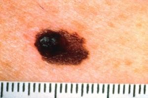 A for Asymmetry | Asymmetrical Skin Cancer