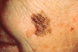 D for Diameter of Skin Cancer